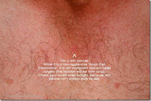 paul's skin cancer2